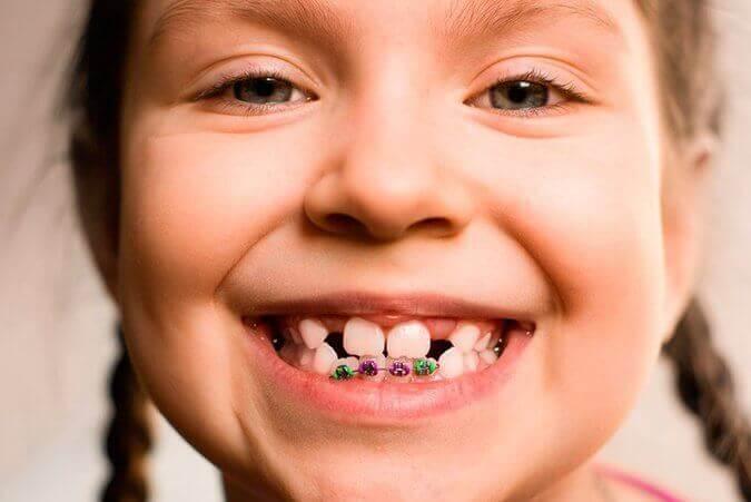 aparaty ortodontyczne dla dzieci
